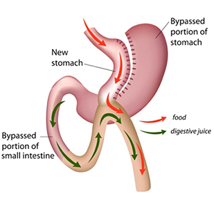 Mini-Gastric Bypass